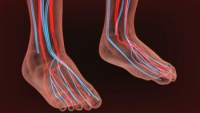 How Common Is Peripheral Artery Disease?